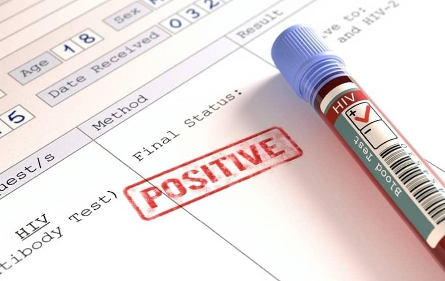 Beberapa Cara Penularan HIV Aids